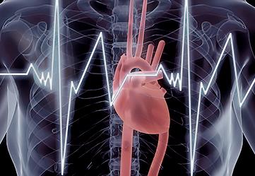 Электрокардиография (ЭКГ) в Самаре
